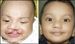 Before and after cleft lip surgery