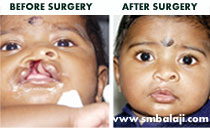 lip surgery in India